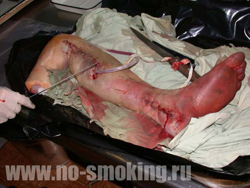 теперь хочется курить?..